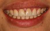 after two front veneers 18.3