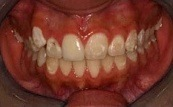 before and after of white fillings 2.0.1