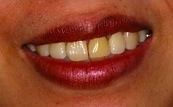 before and after one single veneer 16.3.1