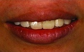 before and after one single veneer 16.3.2