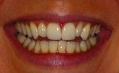 before and after veneers 11.3.1