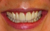 before and after veneers 11.3.2
