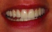before and after veneers 12.1.2