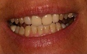 before and after veneers 14.1.1