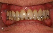 before and after veneers and crowns 3.5.2