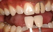 before one single veneer 23.2