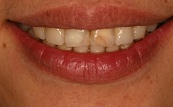 before two front veneers 18.2